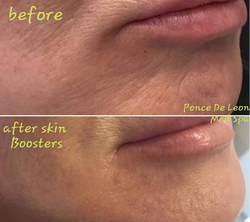 skin booster before after