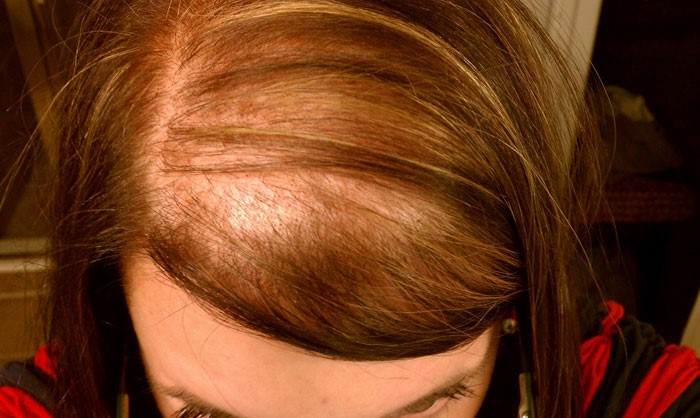 woman thinning hair