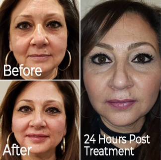 Woman with Platelet-Rich Fibrin Facelift Treatment Before and After