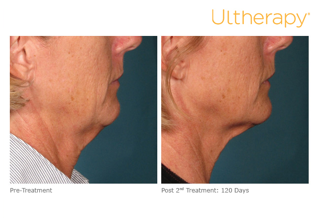 ultherapy000l005y_before120daysafter2tx_lower