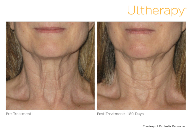 ultherapy00280086w_before180daysafter_neck